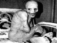 【衝撃】昔の医療や病気に関する歴史的画像集・・・。